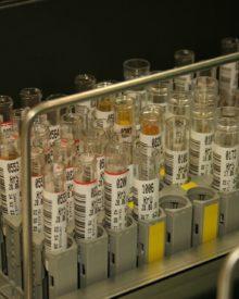 Le possibili cause delle urine scure